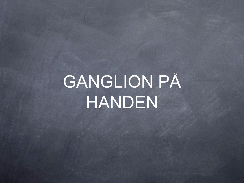 GANGLION PÅ HANDEN