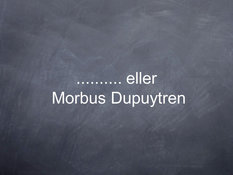 .......... eller Morbus Dupuytren