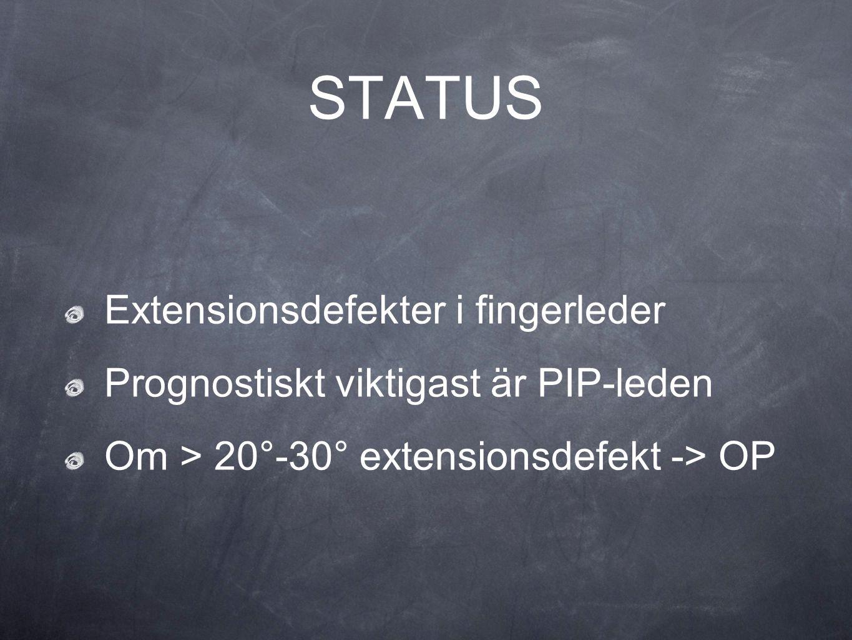 Extensionsdefekter i fingerleder Prognostiskt viktigast är PIP-leden Om > 20°-30° extensionsdefekt -> OP STATUS