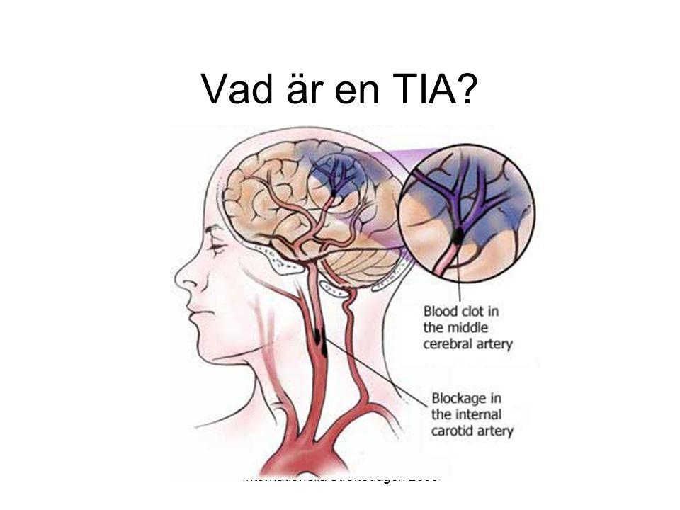 Internationella Strokedagen 2009 Handläggning vid TIA •Första dygnet: alltid inläggning med observation •Första 2 veckorna: Snabb utredning och start av behandling ABCD2 score 5 eller högre: inläggning.