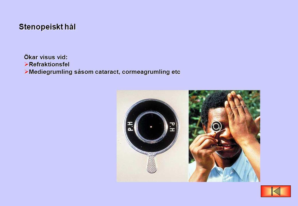 Stenopeiskt hål Ökar visus vid:  Refraktionsfel  Mediegrumling såsom cataract, cormeagrumling etc