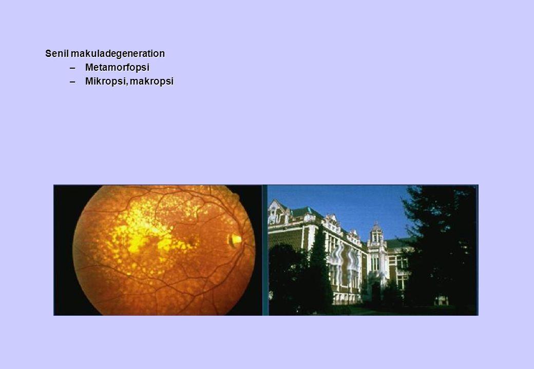 Senil makuladegeneration –Metamorfopsi –Mikropsi, makropsi