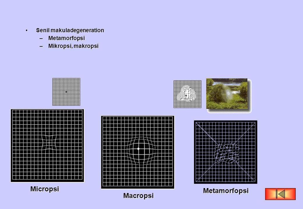 •Senil makuladegeneration –Metamorfopsi –Mikropsi, makropsi Macropsi Micropsi Metamorfopsi