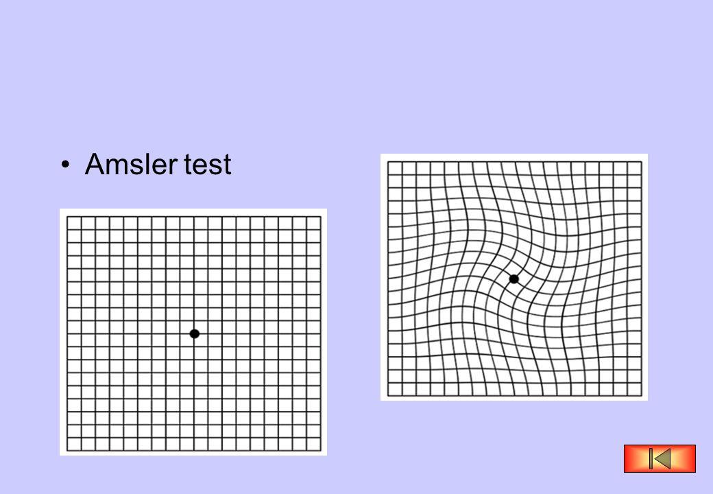 •Amsler test