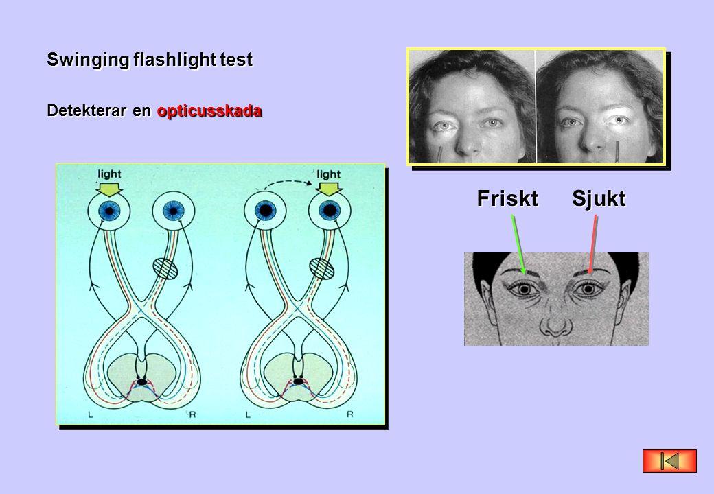 Swinging flashlight test Detekterar en opticusskada FrisktSjukt