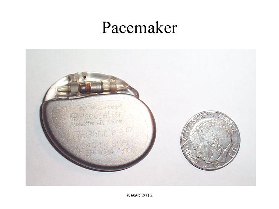 Kesek 2012 Pacemaker