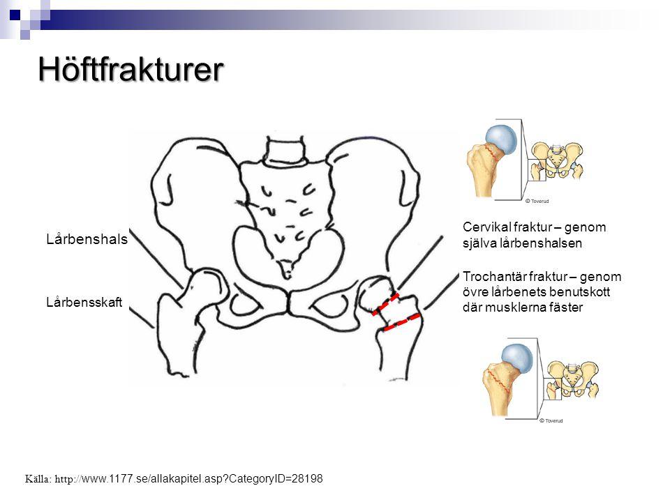 Höftfrakturer Lårbenshals Lårbensskaft Cervikal fraktur – genom själva lårbenshalsen Trochantär fraktur – genom övre lårbenets benutskott där musklern