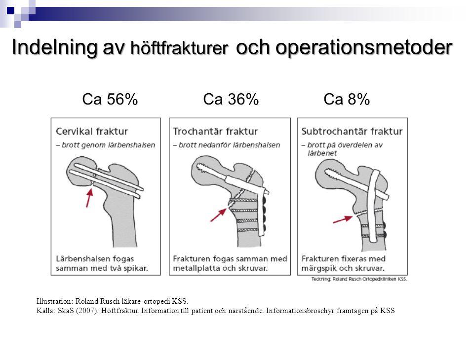 Indelning av höftfrakturer och operationsmetoder Illustration: Roland Rusch läkare ortopedi KSS. Källa: SkaS (2007). Höftfraktur. Information till pat