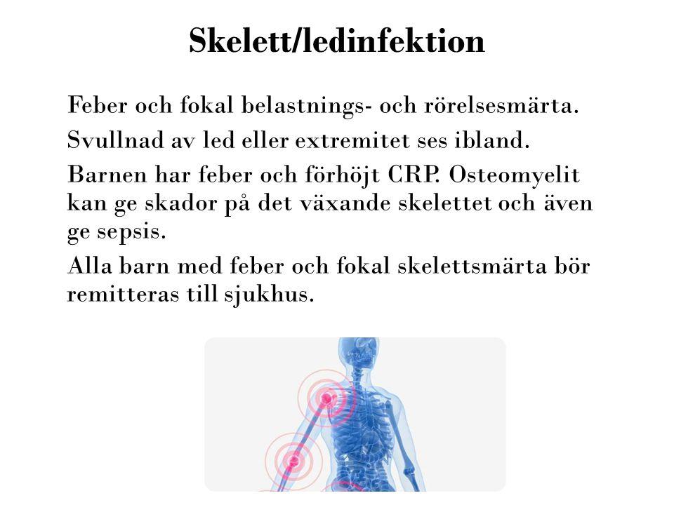 Skelett/ledinfektion Feber och fokal belastnings- och rörelsesmärta. Svullnad av led eller extremitet ses ibland. Barnen har feber och förhöjt CRP. Os