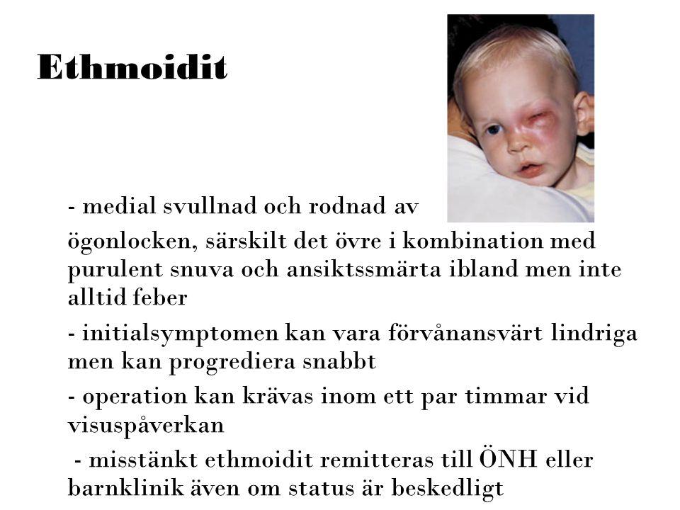 Ethmoidit - medial svullnad och rodnad av ögonlocken, särskilt det övre i kombination med purulent snuva och ansiktssmärta ibland men inte alltid febe
