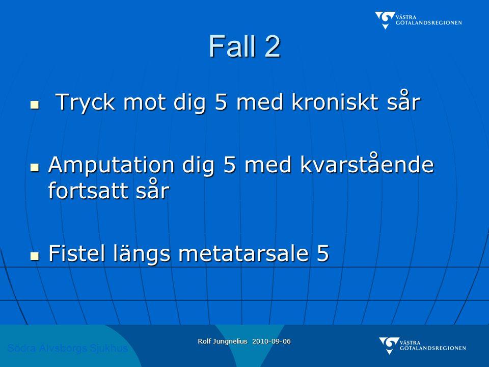 Södra Älvsborgs Sjukhus Rolf Jungnelius 2010-09-06 Fall 2  Tryck mot dig 5 med kroniskt sår  Amputation dig 5 med kvarstående fortsatt sår  Fistel