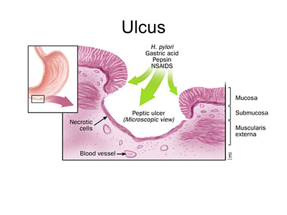 Ulcus