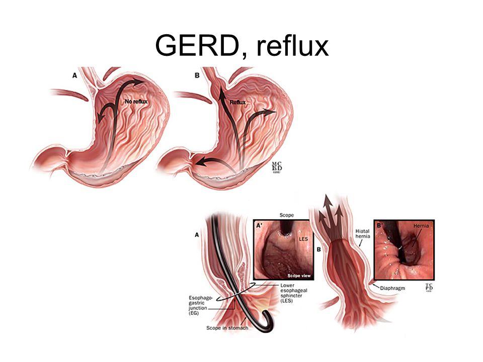 Ulcus ventrikuli •75% orsakas av H. pylori •ASA/NSAID •Ventrikelcancer •Skoperas till läkning, px.