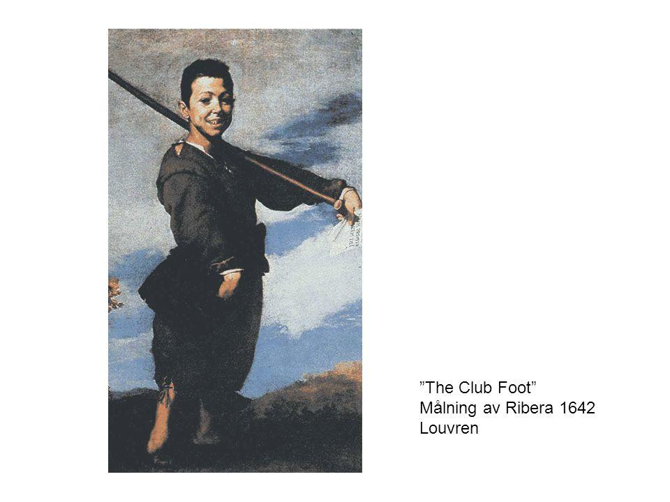 """""""The Club Foot"""" Målning av Ribera 1642 Louvren"""