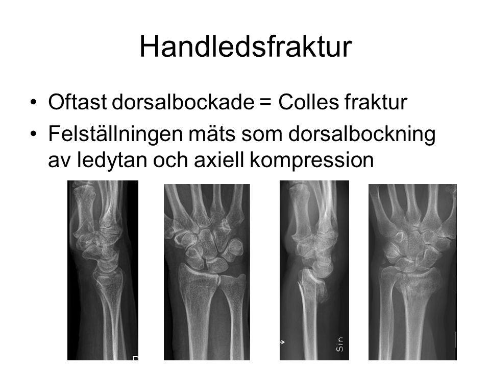 Handledsfraktur •Oftast dorsalbockade = Colles fraktur •Felställningen mäts som dorsalbockning av ledytan och axiell kompression