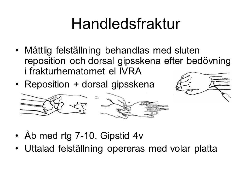 •Måttlig felställning behandlas med sluten reposition och dorsal gipsskena efter bedövning i frakturhematomet el IVRA •Reposition + dorsal gipsskena •