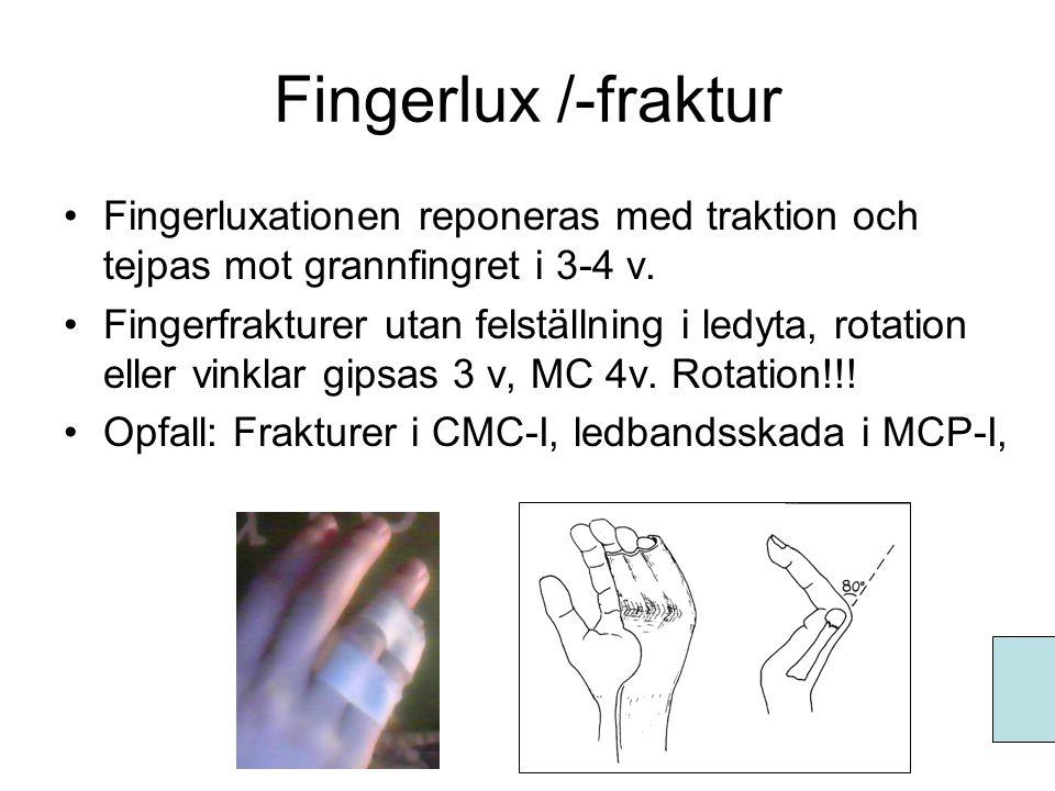 Fingerlux /-fraktur •Fingerluxationen reponeras med traktion och tejpas mot grannfingret i 3-4 v. •Fingerfrakturer utan felställning i ledyta, rotatio
