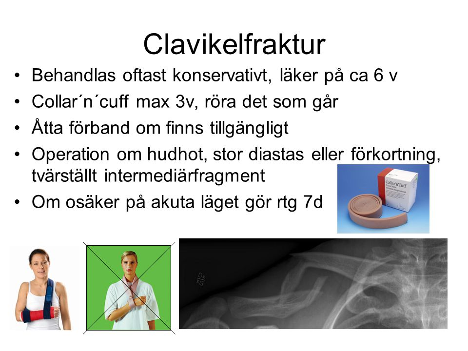 Clavikelfraktur •Behandlas oftast konservativt, läker på ca 6 v •Collar´n´cuff max 3v, röra det som går •Åtta förband om finns tillgängligt •Operation