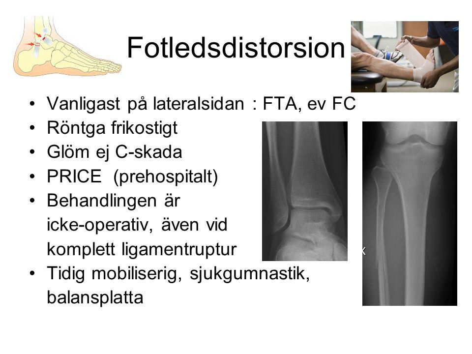 Fotledsdistorsion •Vanligast på lateralsidan : FTA, ev FC •Röntga frikostigt •Glöm ej C-skada •PRICE (prehospitalt) •Behandlingen är icke-operativ, äv