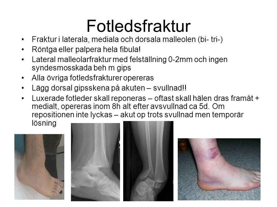 Fotledsfraktur •Fraktur i laterala, mediala och dorsala malleolen (bi- tri-) •Röntga eller palpera hela fibula! •Lateral malleolarfraktur med felställ