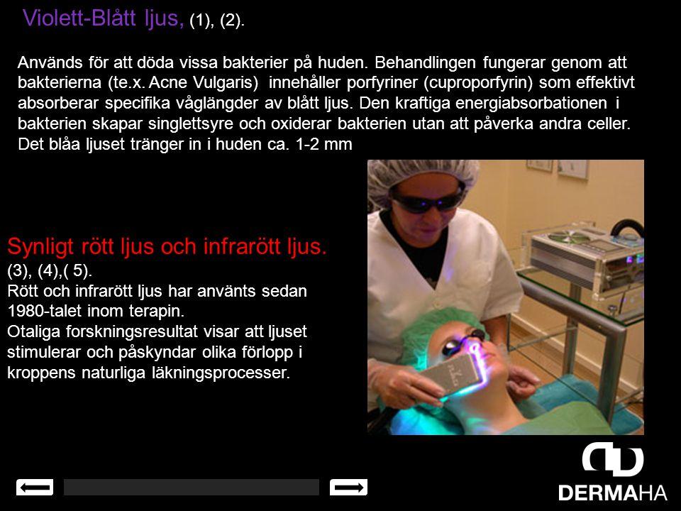 Violett-Blått ljus, (1), (2). Används för att döda vissa bakterier på huden. Behandlingen fungerar genom att bakterierna (te.x. Acne Vulgaris) innehål
