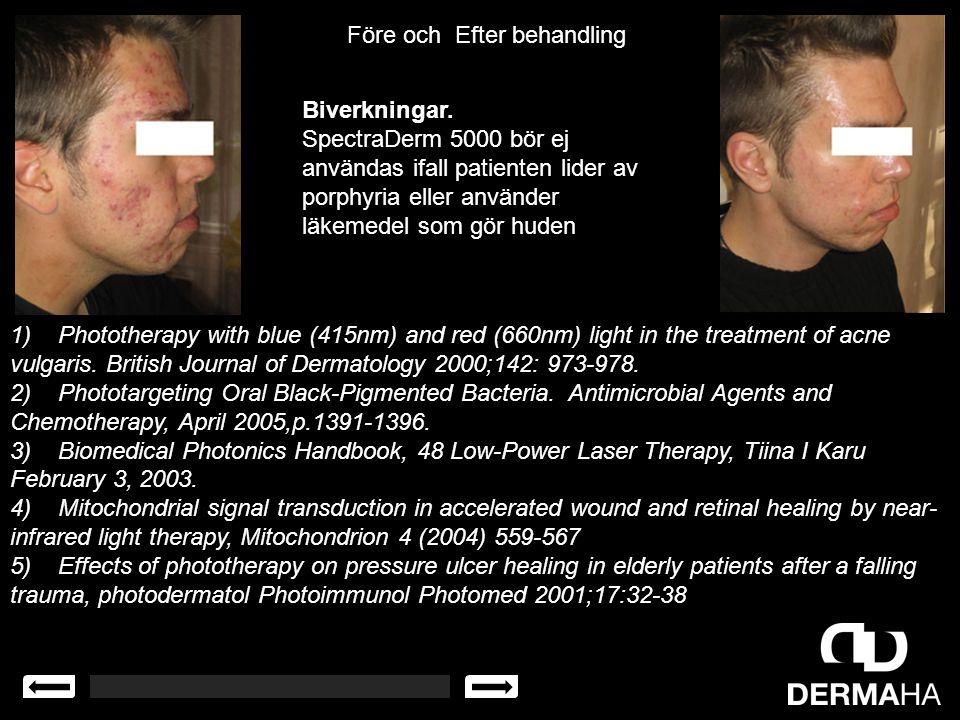 Biverkningar. SpectraDerm 5000 bör ej användas ifall patienten lider av porphyria eller använder läkemedel som gör huden Före och Efter behandling 1)