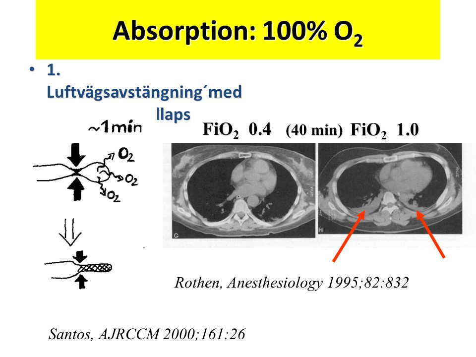 Absorption: 100% O 2 • 1. Luftvägsavstängning´med absorptionskollaps Santos, AJRCCM 2000;161:26 Rothen, Anesthesiology 1995;82:832 FiO 2 0.4 FiO 2 1.0