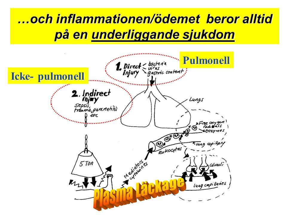 …och inflammationen/ödemet beror alltid på en underliggande sjukdom Icke- pulmonell Pulmonell