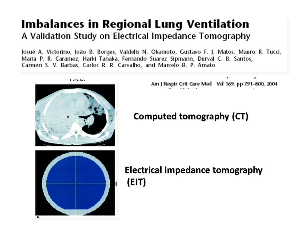 Electrical impedance tomography (EIT) (EIT) Computed tomography (CT)