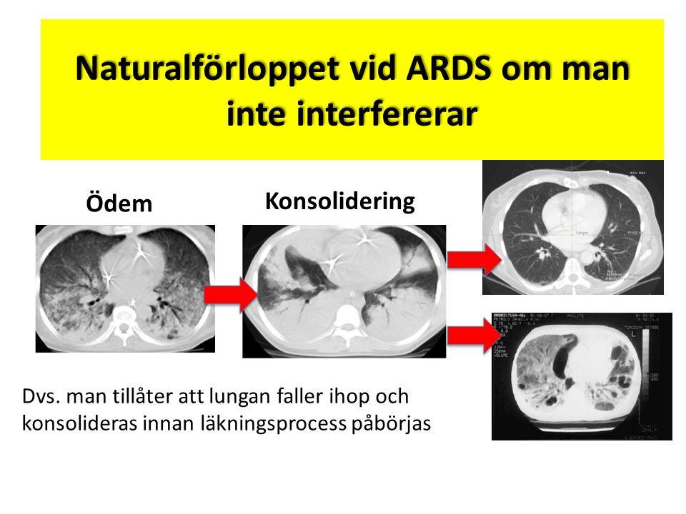 Naturalförloppet vid ARDS om man inte interfererar Dvs. man tillåter att lungan faller ihop och konsolideras innan läkningsprocess påbörjas Ödem Konso