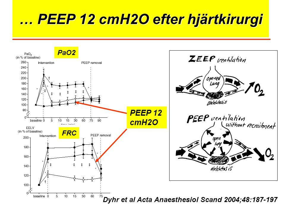 … PEEP 12 cmH2O efter hjärtkirurgi PEEP 12 cmH2O Dyhr et al Acta Anaesthesiol Scand 2004;48:187-197 PaO2 FRC