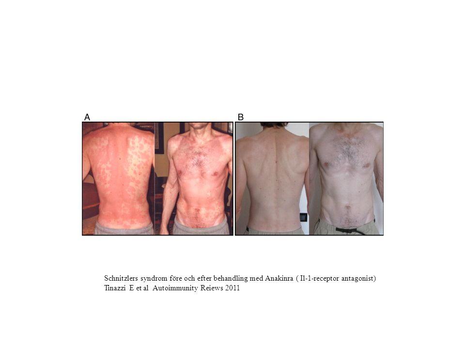 Schnitzlers syndrom före och efter behandling med Anakinra ( Il-1-receptor antagonist) Tinazzi E et al Autoimmunity Reiews 2011