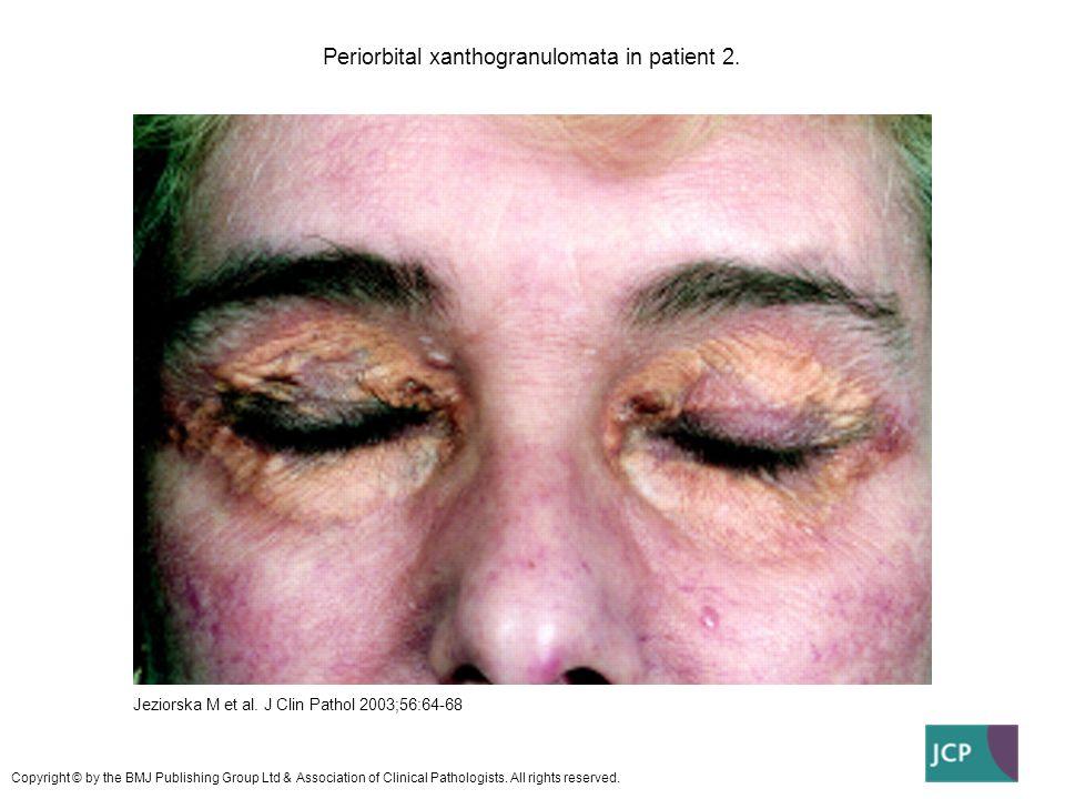 Periorbital xanthogranulomata in patient 2. Jeziorska M et al. J Clin Pathol 2003;56:64-68 Copyright © by the BMJ Publishing Group Ltd & Association o