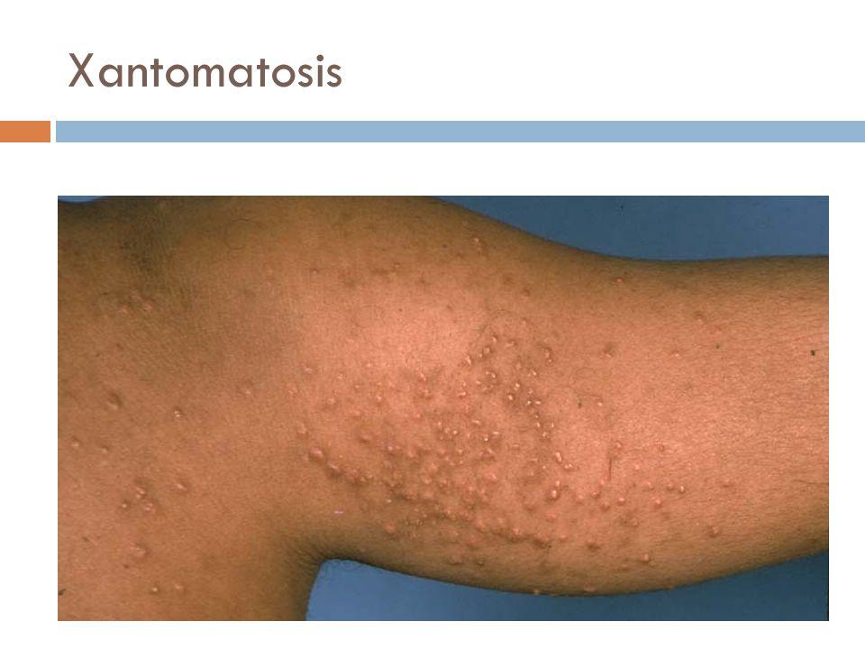 Xantomatosis