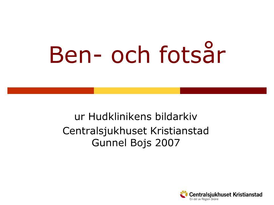 Ben- och fotsår ur Hudklinikens bildarkiv Centralsjukhuset Kristianstad Gunnel Bojs 2007