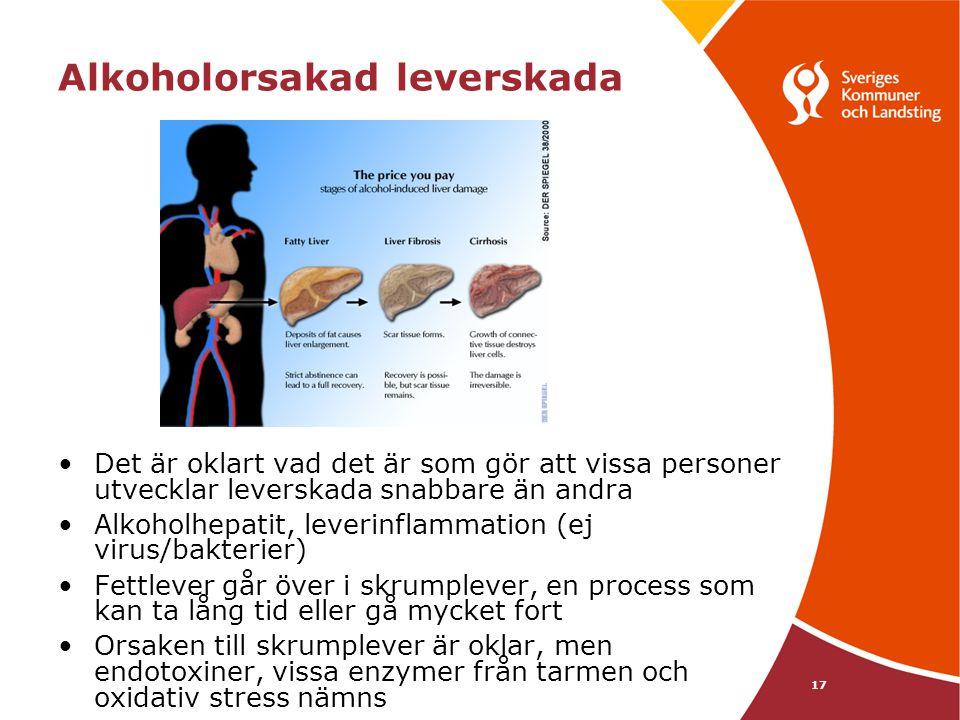 17 Alkoholorsakad leverskada •Det är oklart vad det är som gör att vissa personer utvecklar leverskada snabbare än andra •Alkoholhepatit, leverinflamm