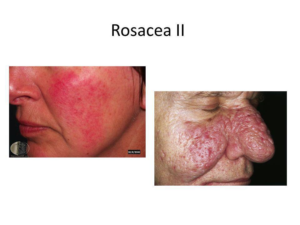 Rosacea II