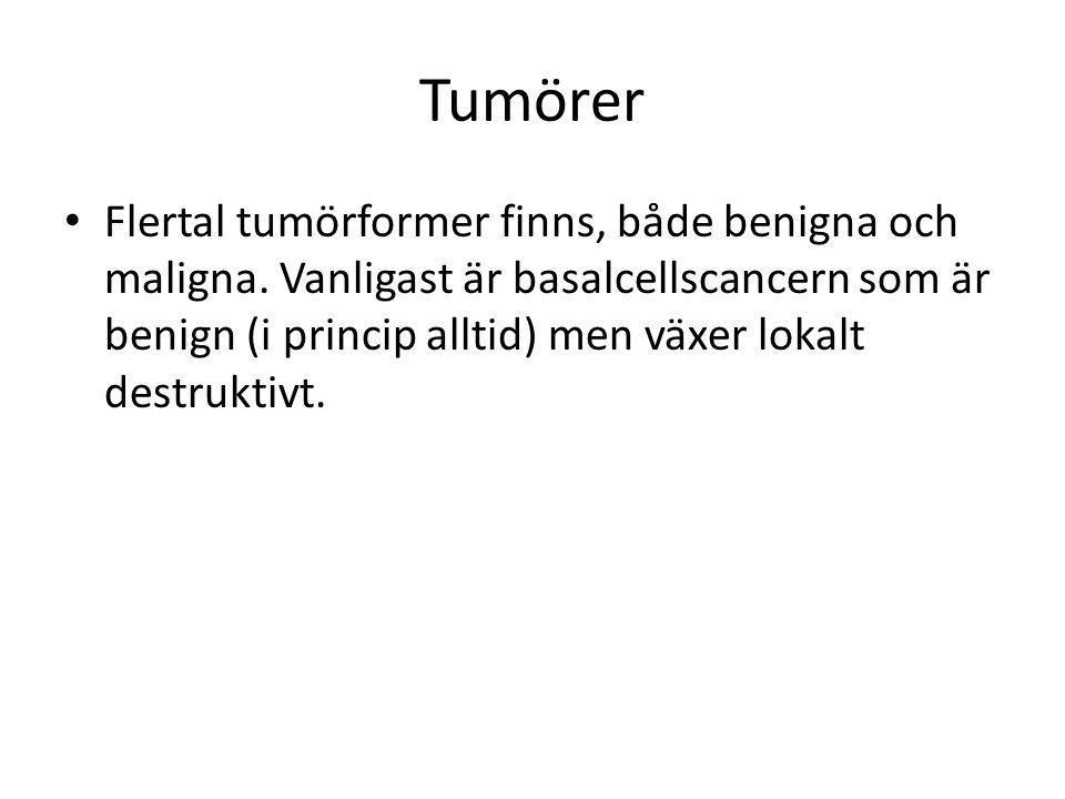 Tumörer • Flertal tumörformer finns, både benigna och maligna. Vanligast är basalcellscancern som är benign (i princip alltid) men växer lokalt destru