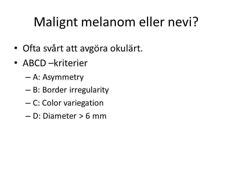 Malignt melanom eller nevi? • Ofta svårt att avgöra okulärt. • ABCD –kriterier – A: Asymmetry – B: Border irregularity – C: Color variegation – D: Dia