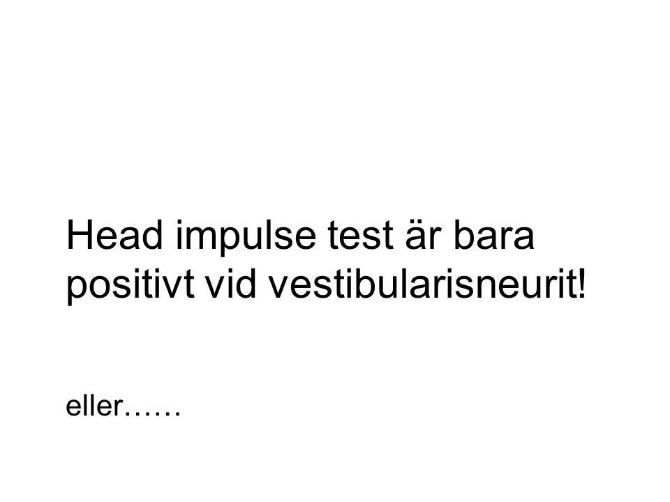 Head impulse test är bara positivt vid vestibularisneurit! eller……