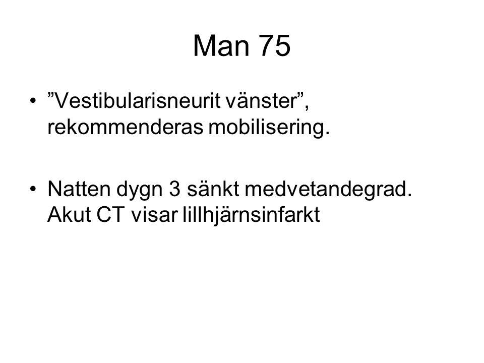 """Man 75 •""""Vestibularisneurit vänster"""", rekommenderas mobilisering. •Natten dygn 3 sänkt medvetandegrad. Akut CT visar lillhjärnsinfarkt"""