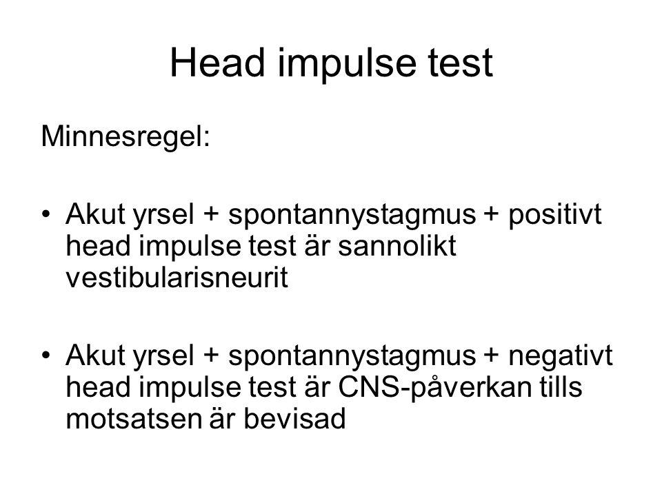 Head impulse test Minnesregel: •Akut yrsel + spontannystagmus + positivt head impulse test är sannolikt vestibularisneurit •Akut yrsel + spontannystagmus + negativt head impulse test är CNS-påverkan tills motsatsen är bevisad