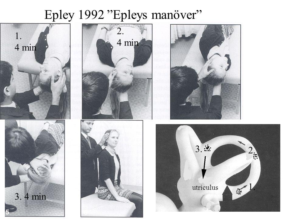 "Epley 1992 ""Epleys manöver"" 1. 4 min 2. 4 min 3. 4 min 1. 2. 3. utriculus"