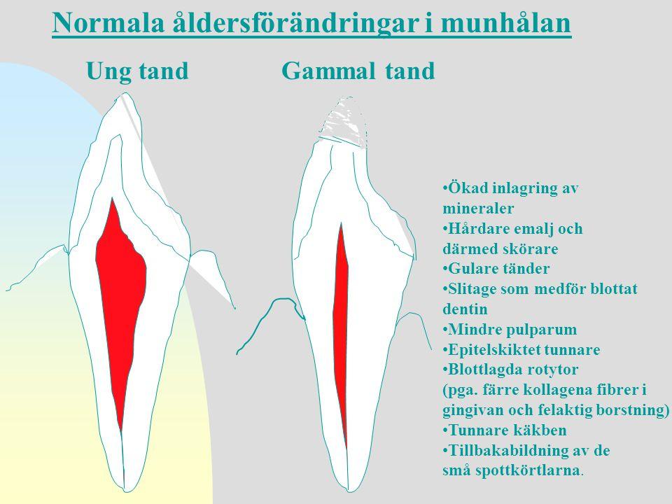 Ung tandGammal tand •Ökad inlagring av mineraler •Hårdare emalj och därmed skörare •Gulare tänder •Slitage som medför blottat dentin •Mindre pulparum
