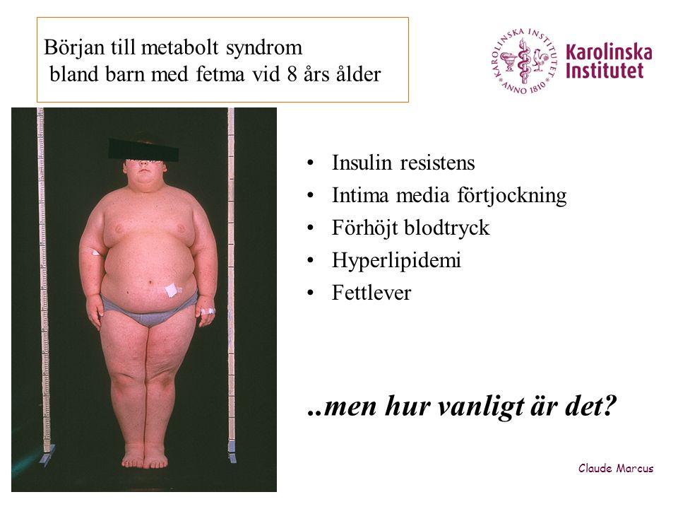 Störd dygnsreglering av blodtryck •50% av allvarligt obesa tonåringar har ingen sänkning av nattblodtrycket (non-dipping) (M Westerståhl Marcus C IJOB 2010) •40% av allvarligt obesa prepubertala barn är non-dippers (M Westerståhl et al subm) –Men den kliniska signifikansen okänd Claude Marcus