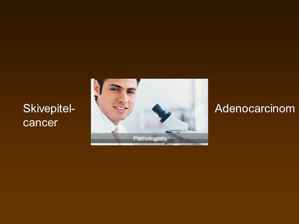 Skivepitel- cancer Adenocarcinom
