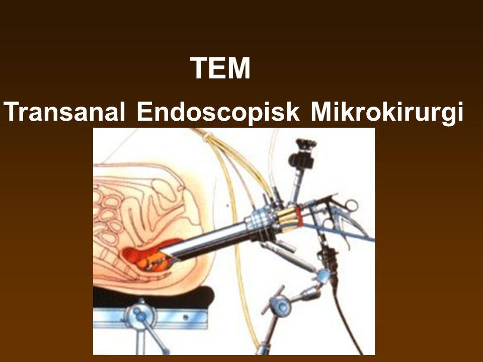 TEM Transanal Endoscopisk Mikrokirurgi