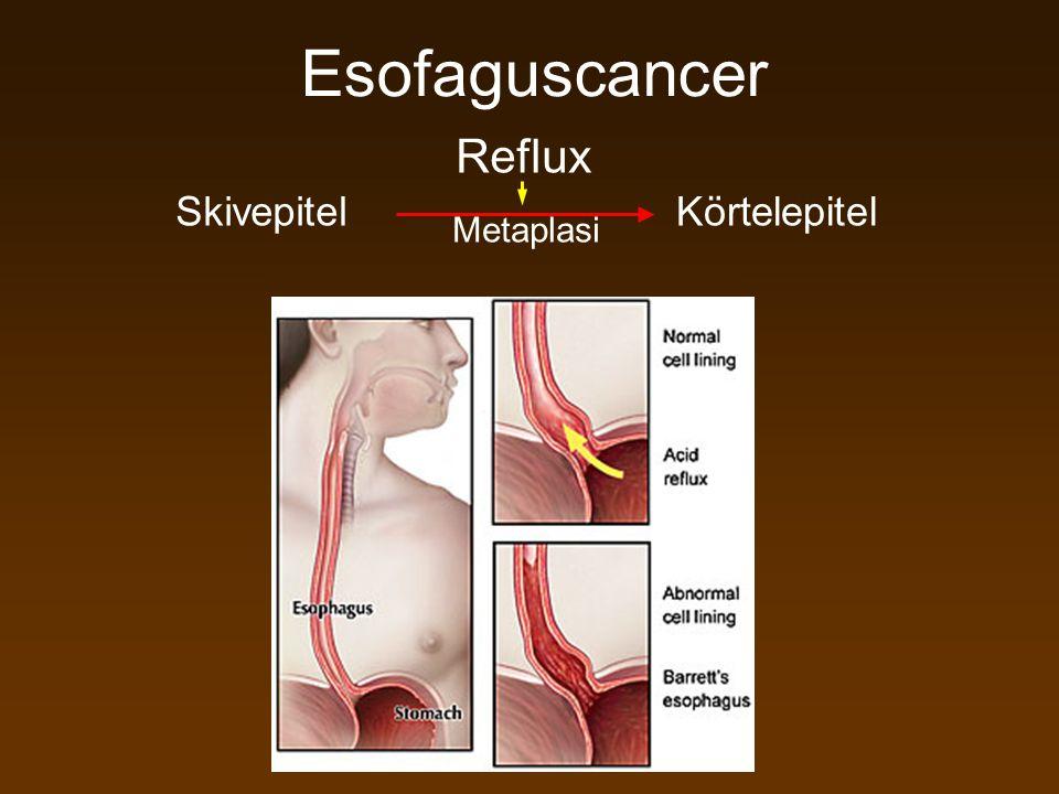 Esofaguscancer Reflux SkivepitelKörtelepitel Metaplasi