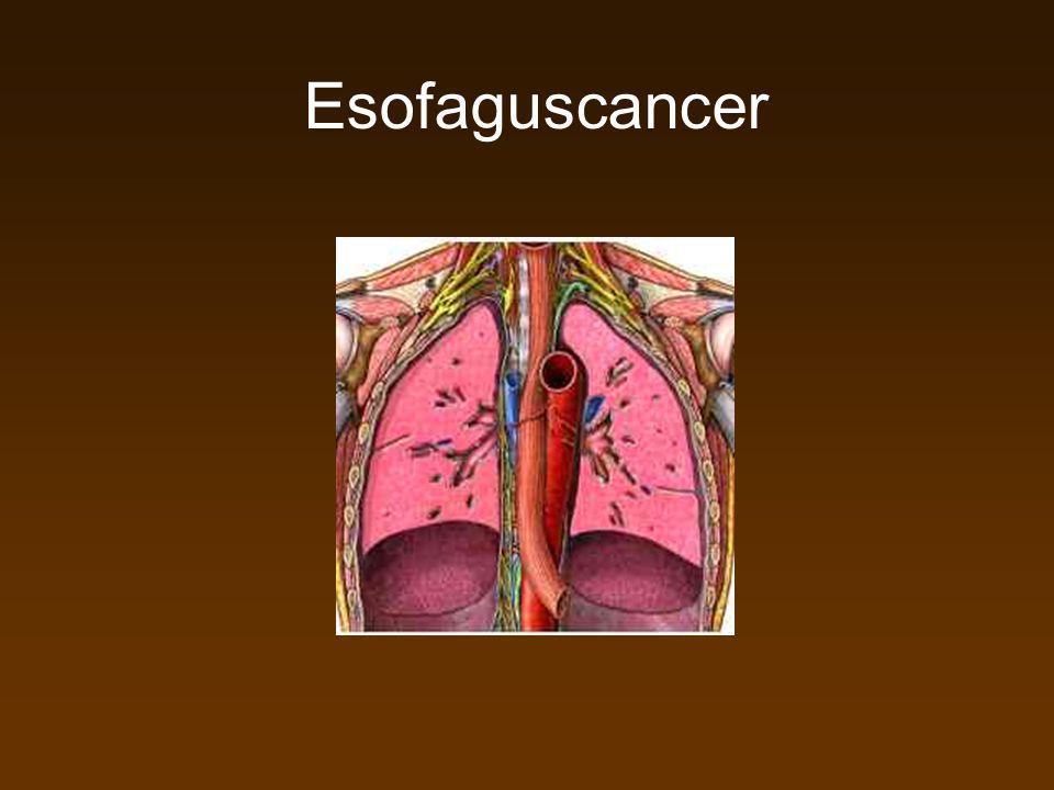 Koloncancer Tunntarmscancer