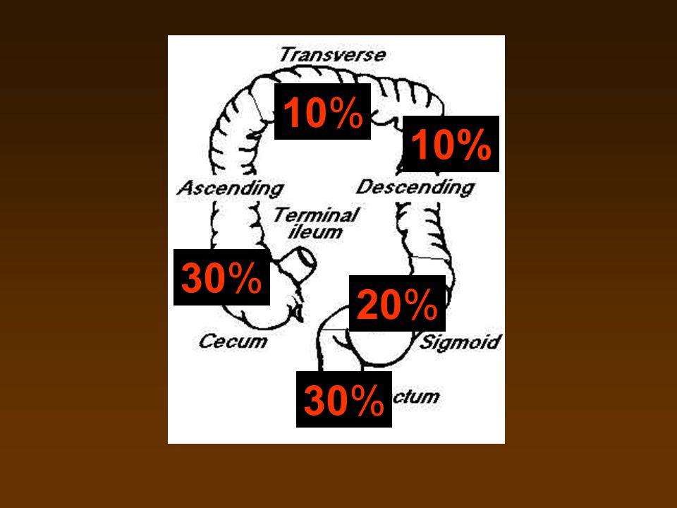 30% 20% 10% 30%